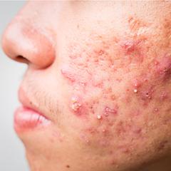 acne o infezione batterica