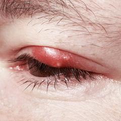 infezione oculare occhi rossi
