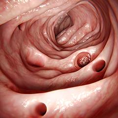 dieta liquida per il riposo dei sintomi intestinali