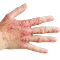 dieta per l eliminazione degli alimenti per l eczema