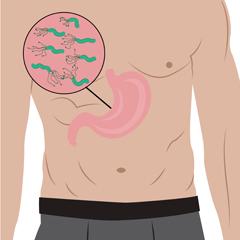 sintomi infezione stomaco