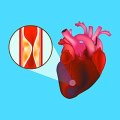 laritmia provoca disfunzione erettile