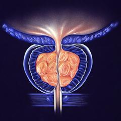 la nicturia è un sintomo del cancro alla prostata
