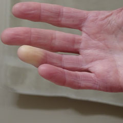 Sindrome o fenomeno di Raynaud