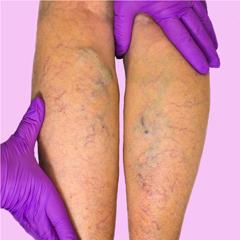 quale procedura richiede una vena dalla gamba